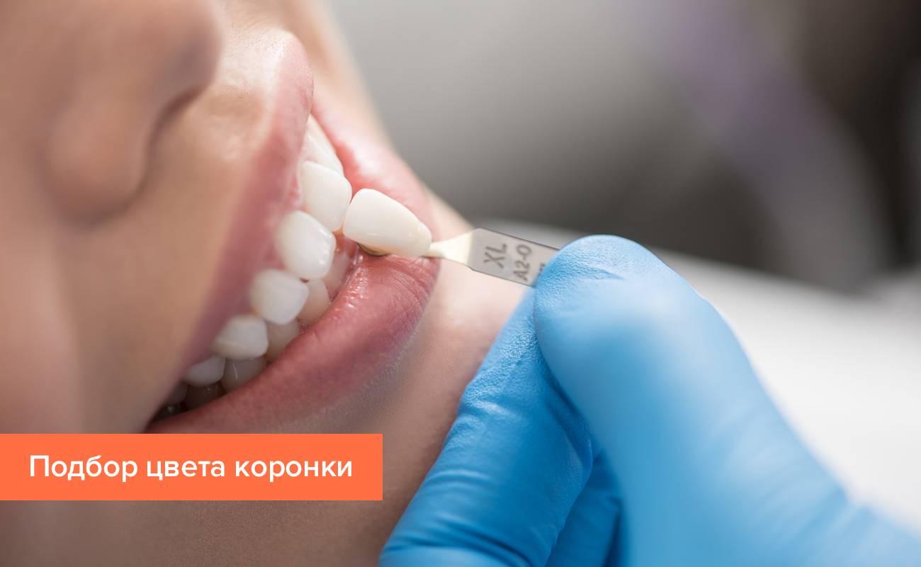 Фото с подбором цвета зубной коронки с помощью шкалы Vita