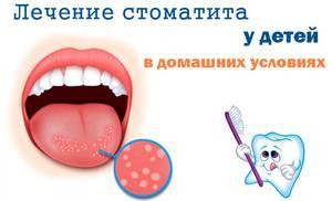 Лечение стоматита - помощь детям и взрослым