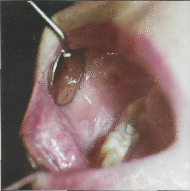 Обильное слюноотделение и тошнота причины — Зубы
