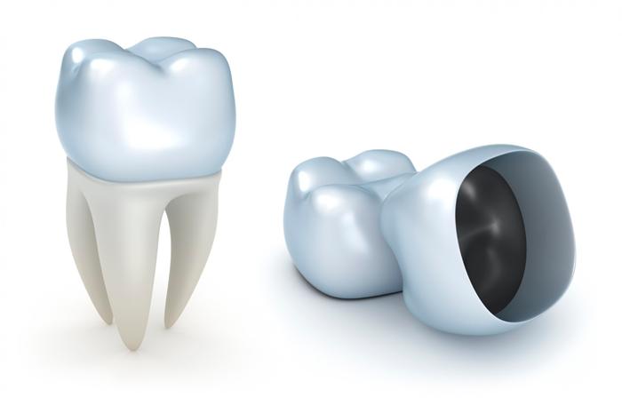 Какие бывают зубные протезы и коронки — Зубы