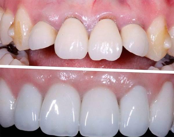 Больно накусывать на зуб под коронкой