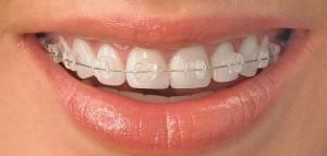 Бруксизм: основные симптомы, причины возникновения у детей и взрослых и методы лечения бруксизма, советы стоматологов