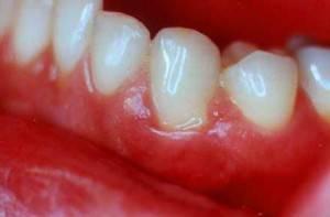 Аллергия во рту на хлоргексидин