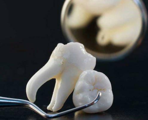 больно ли удалять корни разрушенного зуба