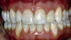 Описание причин ломоты в зубах