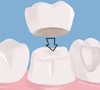 После установки коронки болит зуб при жевании