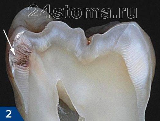 Вид поверхностного кариеса на распиле зуба
