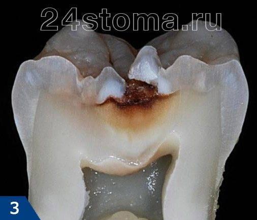 Вид среднего кариеса на распиле зуба