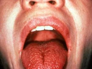 Чувство обожженного языка причины и лечение
