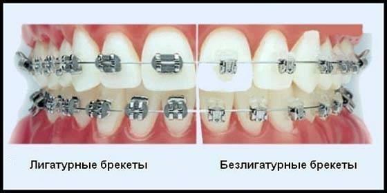 Отличия лигатурных и безлигатурных брекетов