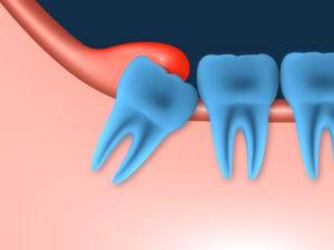 Иссечение и удаление капюшона над зубом мудрости Как избавиться от перикоронита без проблем