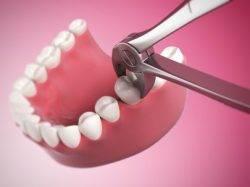 Сгусток крови после удаления зуба
