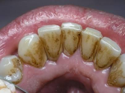 Зубные отложения у курильщиков