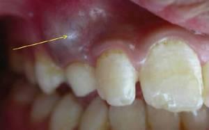 Как появляется киста зуба