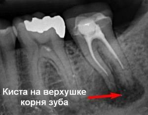 Лечение кисты на зубе начинается с диагностики при помощи рентгена