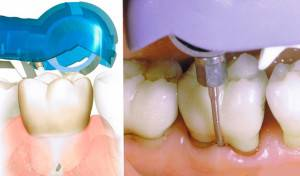 Шершавые зубы после чистки ультразвуком