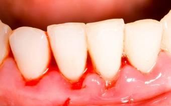 Из больного зуба пошла кровь