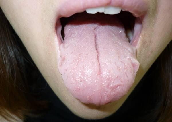 от чего возникает трещина посередине языка
