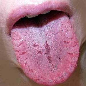 исключительные случаи появления на языке трещин