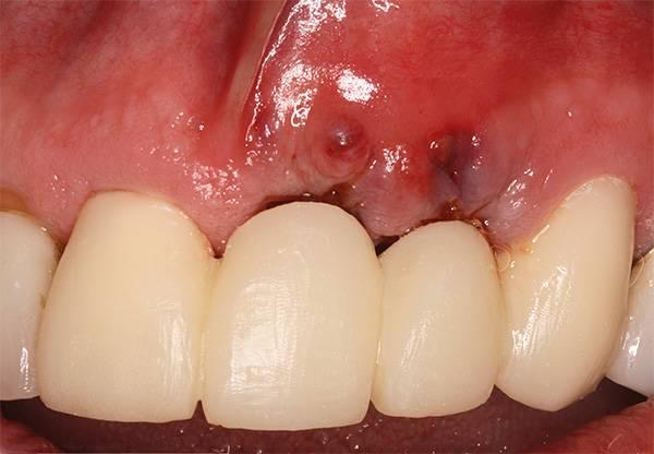 При значительном ухудшении общего состояния здоровья проблемы с зубными имплантами могут начаться даже спустя много лет с момента их установки.