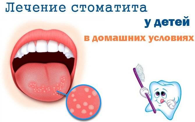 лечение стоматита у ребенка до года