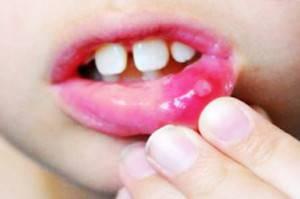 Хронический рецидивирующий стоматит — Зубы