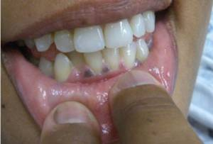 Черная десна у ребенка при прорезывании зубов