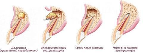 Схема удаления радикулярной кисты на верхнем зубе