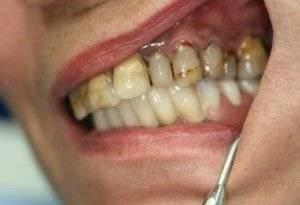 Гноится десна после удаления зуба что делать — Зубы