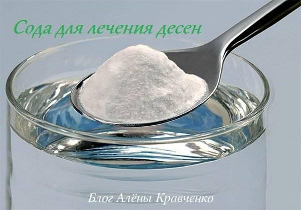 Полоскание содой при воспалении десен