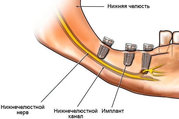 имплантом задет нижнечелюстной нерв