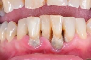 Что такое гранулирующий периодонтит или гранулема зуба какие симптомы и лечение