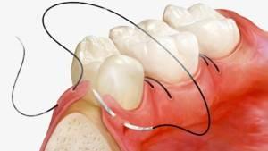 Можно ли проглатывать кровь после удаления зуба