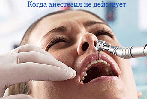 бол-Bez-anestezii-СТОМ