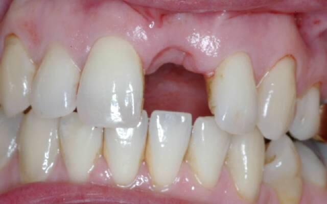 Фото сухой лунки после удаления зуба