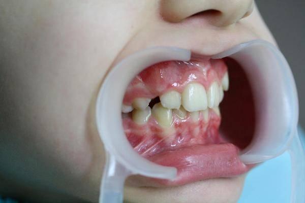 До какого возраста можно ставить брекеты для выравнивания зубов
