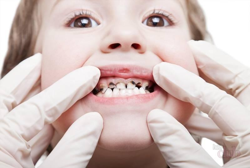 Темный налет на детских зубах