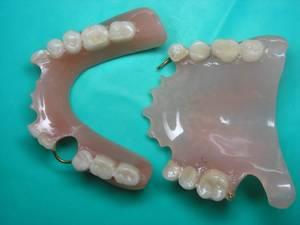 Склеивание зубного протеза