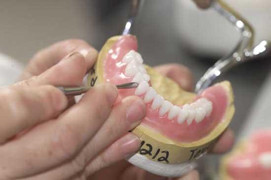 можно ли склеить зубной протез