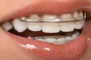 Вид зубных капов
