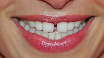 щербинка между зубами