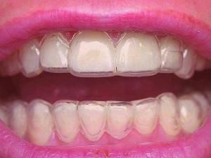 Как смотрятся капы на зубах?