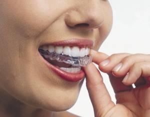 Помогают ли капы выровнять зубы?
