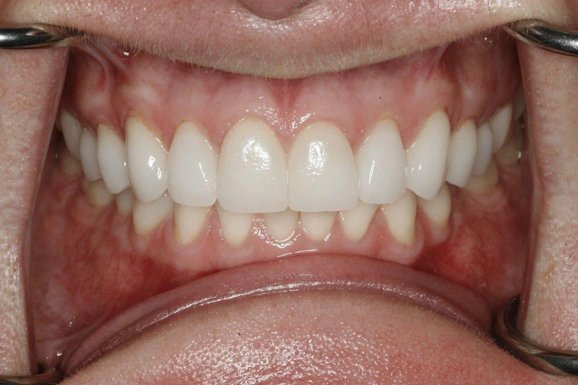 Кровоточит десна между зубами — Зубы