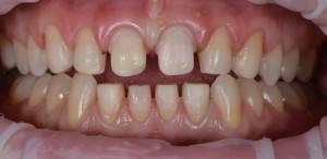 Живые зубы под металлокерамику