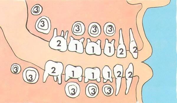 сколько растет новый зуб после выпадения молочного