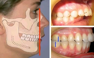Опасность глубокого прикуса зубов