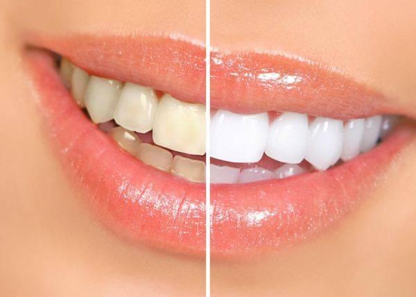 Зубы до и после чистки ультразвуком