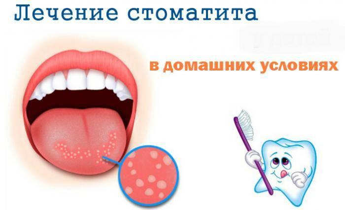 Стоматит - воспаление полости рта