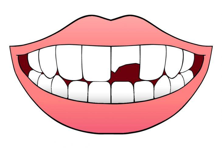 Шатается зуб после удара